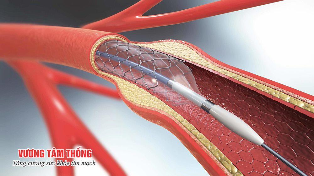 Đặt stent trong điều trị bệnh mạch vành – bệnh tim mạch phổ biến nhất